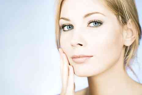 Beauty Is Yours - Three Sessions of Thread Vein Treatment  - Save 81%