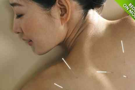 Health - Acupuncture Plus Cupping - Save 67%