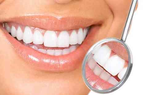 The White House - Laser Teeth Whitening Top Up  - Save 0%
