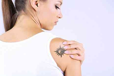 Shape Up Tone Down - Four Sessions of Laser Tattoo Removal - Save 69%