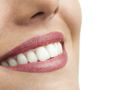 Adeles Beauty - Pearlys teeth whitening treatment  - Save 42%