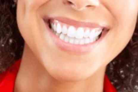 The Laser House - Non peroxide teeth whitening treatment - Save 82%
