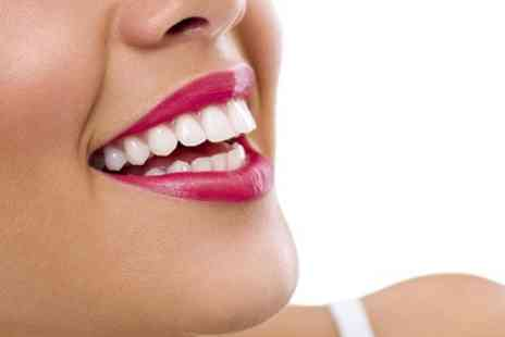 Cheshire Dental Centre - Fixed or Removal Clear Braces For One Arch - Save 0%