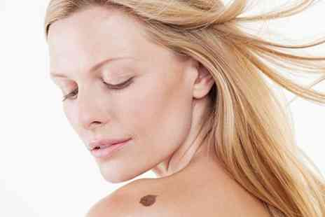 The Beauty Lounge - Mole, Wart, Skin Tag or Birthmark Removal - Save 0%