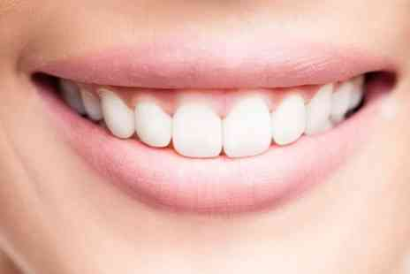 Pure Clinic - Six Month Smiles Clear, Fixed Braces On Single or Both  - Save 67%