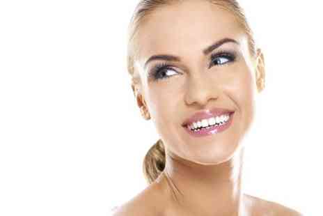 Dental Care  -  Six Month Smiles Braces For Top or Bottom Arch  - Save 53%