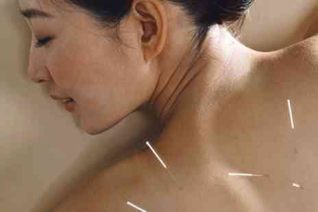 Tantalizing - Acupuncture Session  Plus Massage - Save 67%