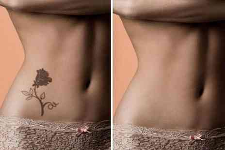 "Sonink - Three 20 minute sessions of tattoo removal on a 3"" x 3"" area, £49 on a 5"" x 5"" area   - Save 79%"