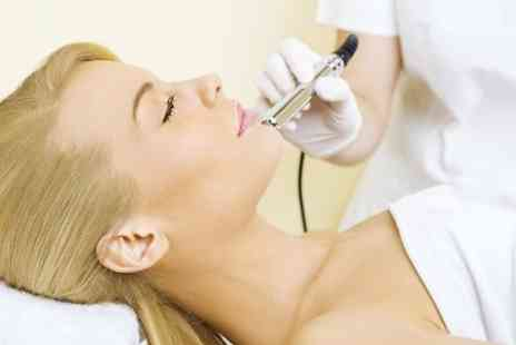 Polonia Hair&Beauty - Three Sessions Of Microdermabrasion - Save 71%