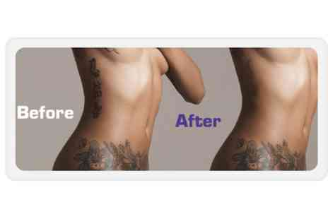 Felicity Natural Beauty - Three sessions of tattoo removal - Save 0%