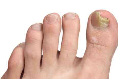 VGmedispa - Fungal nail laser treatment for one foot - Save 0%
