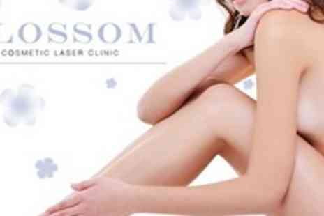 Blossom Cosmetic - 12 Months of IPL Hair Removal - Save 78%