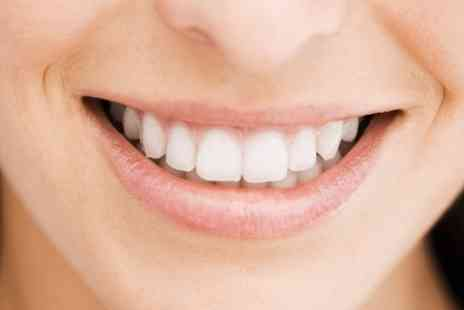 The Perfect Smile and Cosmetic Centre - One Session of Teeth Whitening - Save 86%