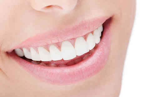 Oxford St Dental - Two porcelain veneers including a consultation  - Save 61%