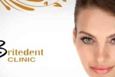Britedent Clinic - Two Porcelain Veneers - Save 64%