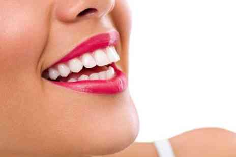 Advance Dental Centre - Scale and Polish - Save 74%