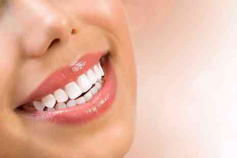 Aura Dental Spa - Upper or lower Six Month Smiles clear braces - Save 56%