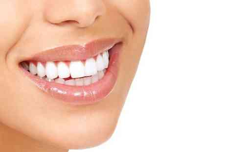 Kensington Dental Spa - Two Laser Teeth Whitening With Airflow and Polish - Save 80%