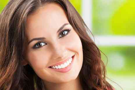 W1 Smile Street   - One hour laser teeth whitening session   - Save 80%