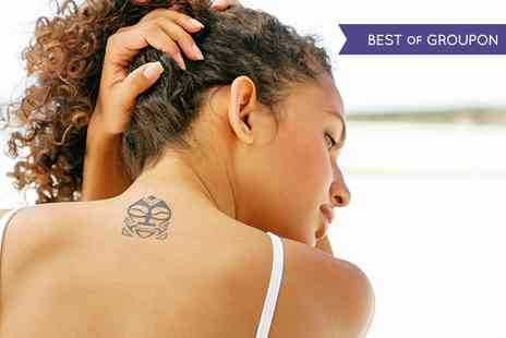Rodney Street Aesthetic Lasers - Laser Tattoo Removal: Three or Six Sessions - Save 90%