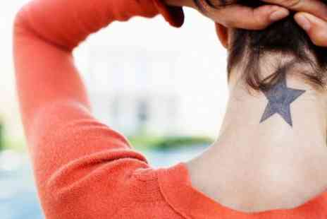 Laserpure -  Two Sessions of Laser Tattoo Removal - Save 39%