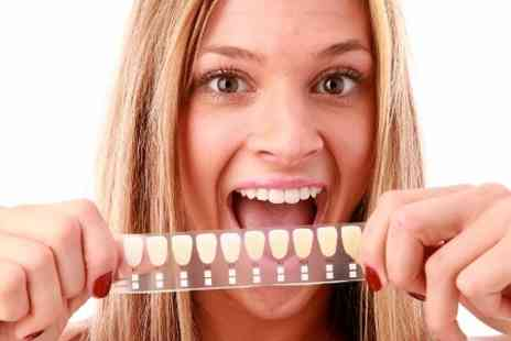 London Smile Kraft - LED Teeth Whitening  - Save 83%