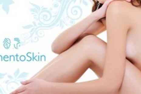 Memento Skin Clinic - Three Radio Frequency Contouring Sessions on Two Areas - Save 75%
