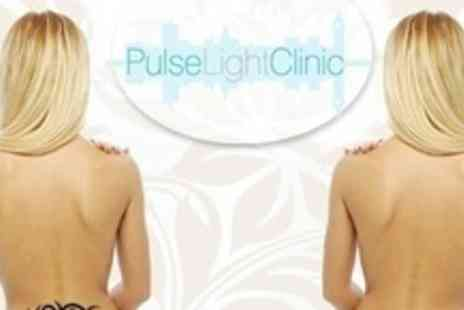 Pulse Light Clinic - Four Laser Tattoo Removal Treatments - Save 84%