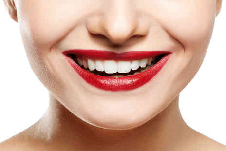 No1 Victoria Terrace  - Home whitening treatment and set of personalised teeth whitening trays  - Save 66%