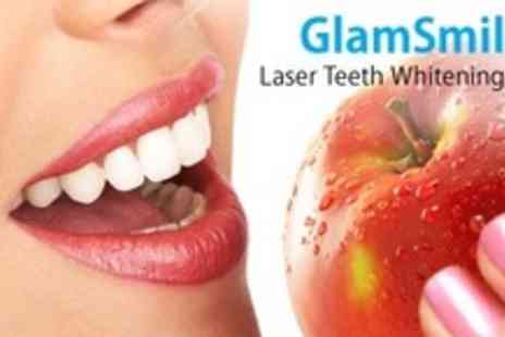 GlamSmile Teeth Whitening Clinic - Teeth Whitening Treatment - Save 74%