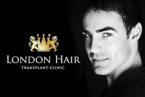 London Hair Transplant Clinic - Follicular Unit Hair Transplantation Treatment - Save 60%