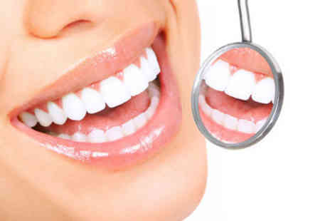 U-Star Beauty - £59 for three Smile Quest teeth whitening sessions plus consultation - Save 80%