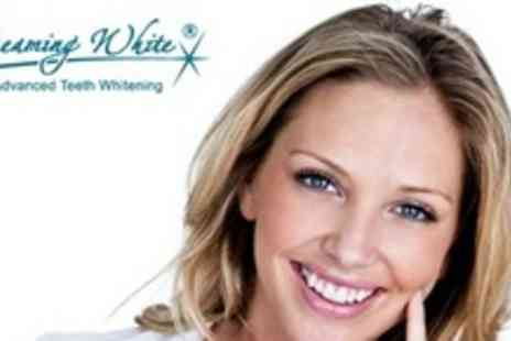 Beaming White - One Hour Laser Teeth Whitening - Save 77%