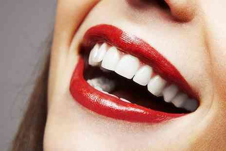 Smileright - Teeth Whitening With Check  - Save 68%