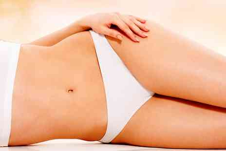 Sparkle - Cryogenic Lipolysis on One Areas  - Save 0%
