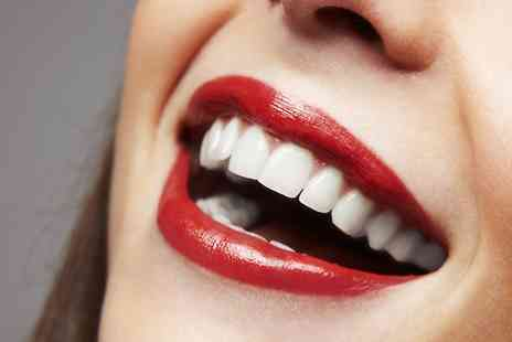 Lavender Hill Dental Practice - Teeth Whitening With Consultation Plus Scale and Polish - Save 71%