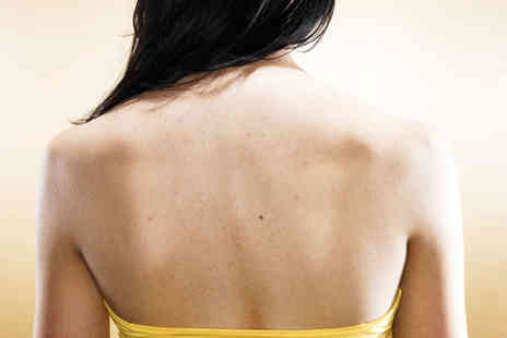 Manchester Laser Clinic - Four Sessions of Laser Tattoo Removal with Patch Test - Save 60%