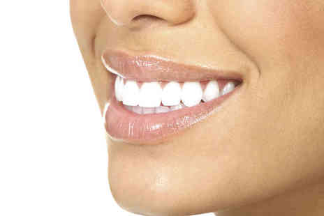 Hillbrook Dental Health Centre - Clear Braces with Teeth Whitening Treatment for One Arch OR Dental Exam with Scale and Polish - Save 0%