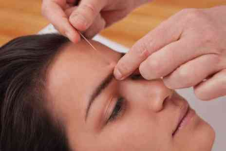 Castle Wellness - One session of pain relief acupuncture   - Save 0%