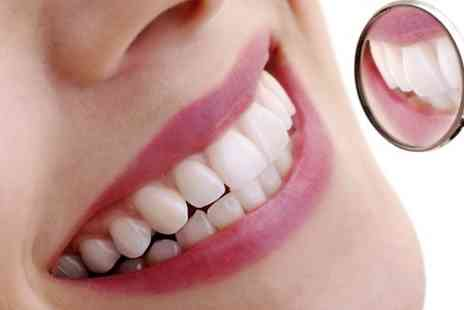 Bright White Smiles - Teeth Whitening  - Save 55%