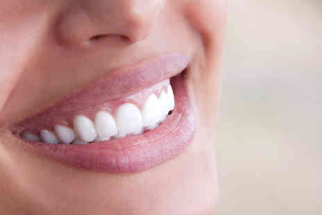 Dentspa - Two dental veneers - Save 57%