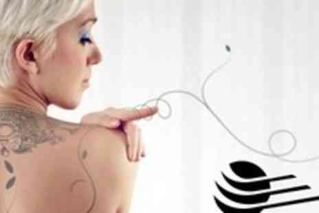 Ultrapulse Studios - Three Sessions of Laser Tattoo Removal - Save 70%