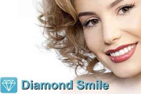 Diamond Smile - LED Teeth Whitening Treatment - Save 60%
