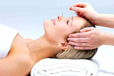 At Source Acupuncture - One Acupuncture Appointments - Save 50%