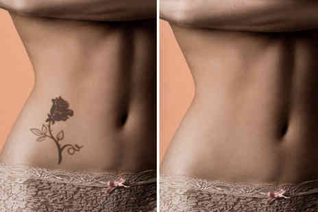 "The Laser Cuts - Three tattoo removal sessions on a 2"" x 2"" area - Save 61%"