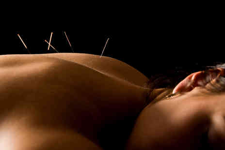 Hannah Palfreyman Acupuncture -   90 minute acupuncture treatment  - Save 70%