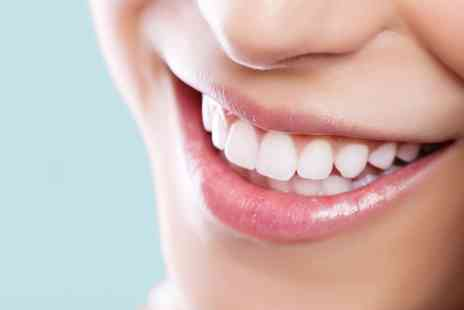 Parkdent Clinic - Porcelain Dental Veneers - Save 50%