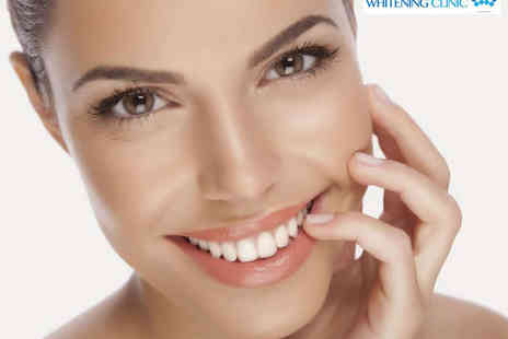 The Whitening Clinic - Teeth Whitening Treatment - Save 74%