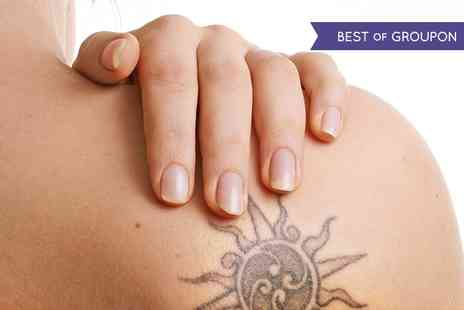 Bodibeautiful - Three Sessions of Laser Tattoo Removal  - Save 63%