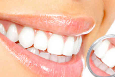Smile Quest - £65 instead of £250 for a 1-hour professional LED teeth whitening treatment including consultation - Save 74%